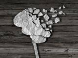 Neuroobrazowanie β-amyloidu