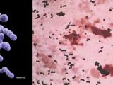 Paciorkowce grupy B - Streptococcus agalactiae
